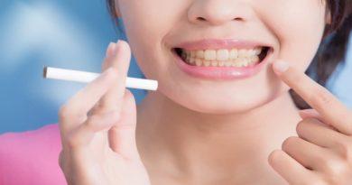 smokers teeth cleaning
