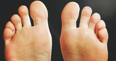 wart removal misconception